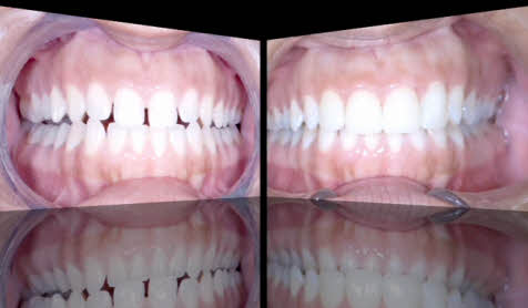 porcelain-veneers