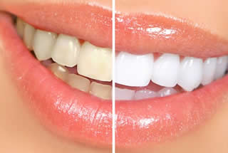Teeth Whitening Woolwich NJ Dental Office