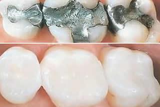 Mercury Free Dentistry Woolwich NJ