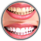 Teeth Whitening Woolwich New Jersey