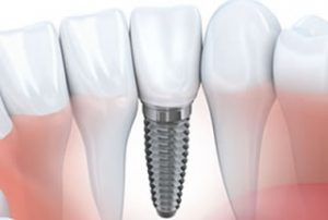 Dental Implants Woolwich New Jersey