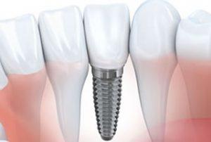 Dental Implants Woolwich New Jersey