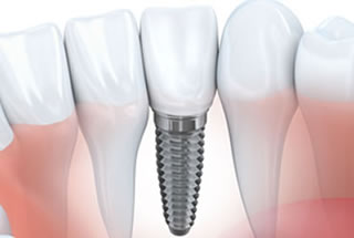 Implant Dentistry Marlton NJ